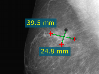 Blog image - RadiAnt DICOM Viewer 1.9.10