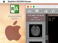 Blog image - RadiAnt on Mac