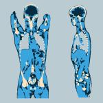 2D and 3D Multi-planar reconstructions (MPR)