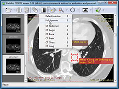 Dicom viewer free download