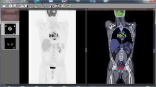 RadiAnt DICOM Viewer PET-CT fusion preview