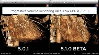 Progressive GPU accelerated Volume Rendering